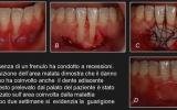 Immagini.chirurgia Dei Frenulinsp 111
